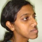Sushma - A Case Of Mandibular Prognanthism